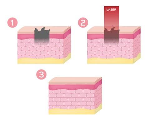 cách trị bỏng bô không để lại sẹo