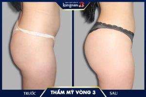 nâng mông đẹp tại kangnam