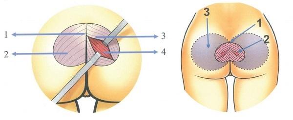 nâng mông nội soi