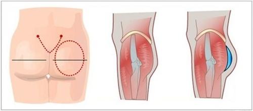 phẫu thuật nâng mông